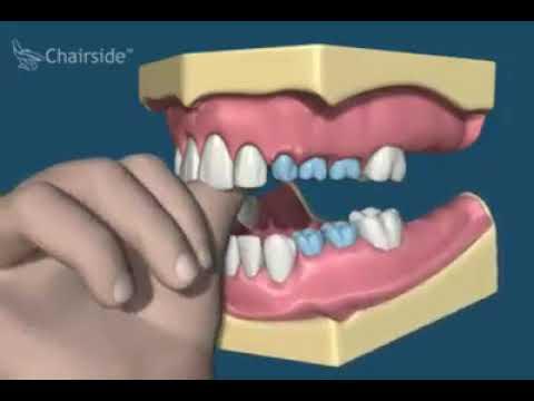 Очень интересное видео о том, как удаление молочных зубов сказывается на постоян