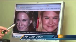 Las Noticias - Renee Zellweger cambia su rostro con más de una cirugía