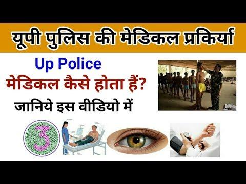 up police medical process | up पुलिस का मेडिकल कैसे होता है? | कलर विजन,eyes, कान टेस्ट |