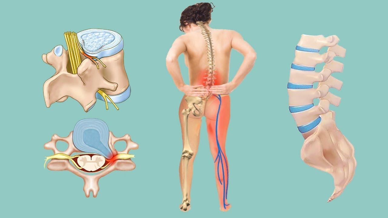 Какие боли могут быть при грыже позвоночника