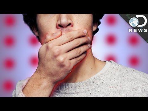 Herpes simplex virus, HSV, вирус простого герпеса 1/2 типа