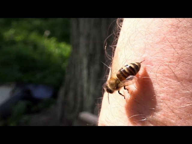 Would You Help A Bee Survive After It Stung You? | Outrageous Acts of Science