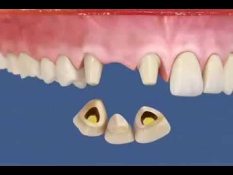 Металлокерамика - протезирование зубов!