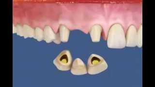 Металлокерамика - протезирование зубов!(Центр Еропейской Стоматологии http://edentcenter.ru м. Купчино (Фрунзенский район) Загребский бульвар д.9 +7 (812) 663-03-03..., 2013-10-01T08:08:53.000Z)