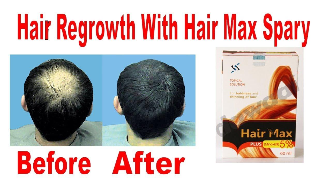 hair max plus