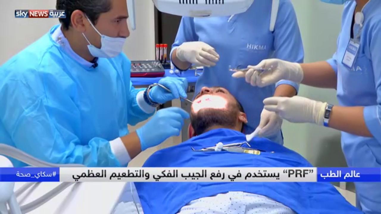 0c3547b11 الأحدث في زراعة الأسنان - YouTube