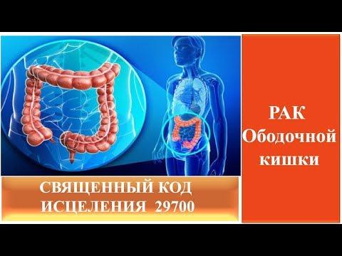 Как исцелить рак ободочной кишки в домшних условиях Священный код исцеления 29700