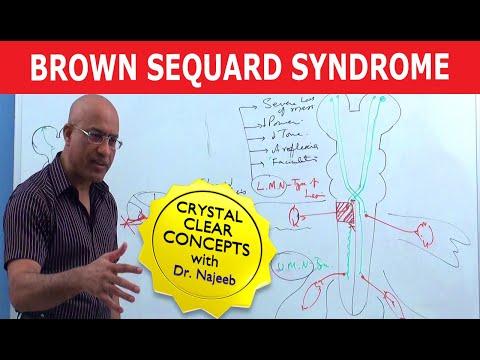 Brown Sequard Syndrome - Internal Medicine