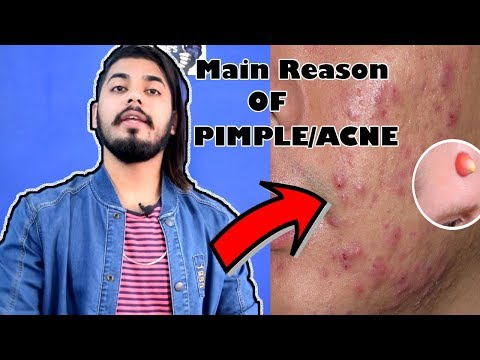 Things You Didn't Know Cause Pimple & Acne | Men's Skin Care Tips | Asad Ansari