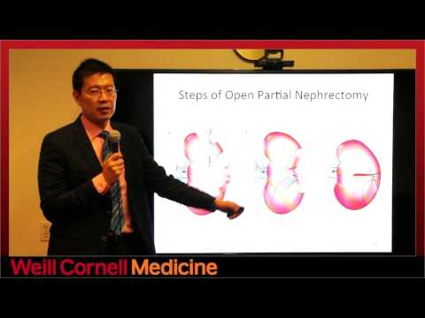 Diagnosis and Treatment of Small Renal Masses - Jim C. Hu, MD, MPH