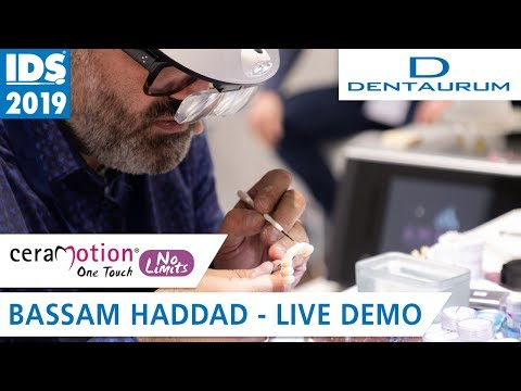 ceraMotion® OneTouch No Limits - The First Layered Ceramics in Pastes | IDS 2019