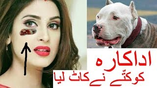 Actress attacked by a dog on Eyes | Shocking News | # Reena #Agarwa