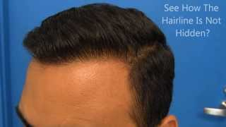 Hasson and Wong Hair Transplant Before/After Results
