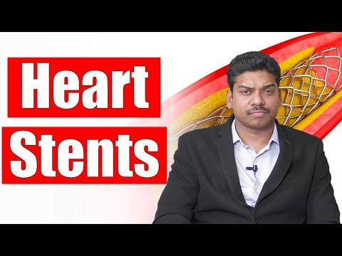 Things You Should Know Before Getting A Heart Stent | Cardiac Surgery