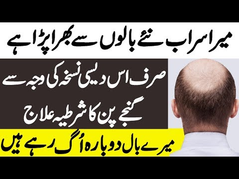Hair Fall Treatment at Home in Hindi - Hair Loss Treatment | Ganjapan ka ilaj