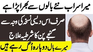 Hair Fall Treatment at Home in Hindi - Hair Loss Treatment | Ganjapan ka ilaj