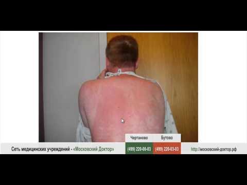 Аллергическая сыпь, как с ней бороться