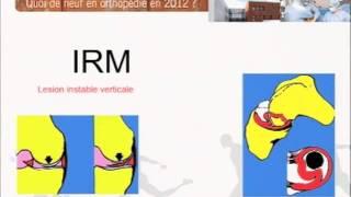 Lésions méniscales: indications chirurgicales. clinique du sport Dr Bousquet