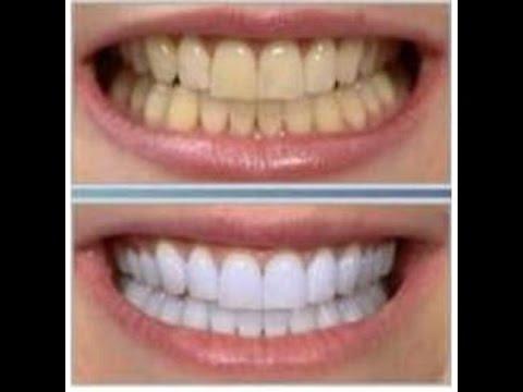 Bicarbonato dientes con como y limon 2 minutos los blanquear en