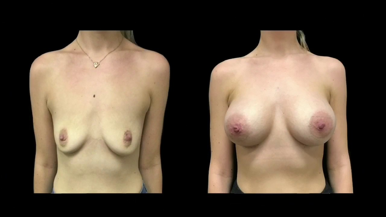 Mtf chest surgery