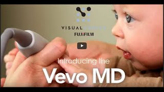 Ultra High Frequency Ultrasound - Vevo MD by FUJIFILM VisualSonics