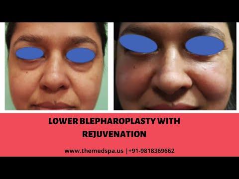 Lower Blepharoplasty with Rejuvenation | Dr Ajaya Kashyap - Plastic Surgeon India