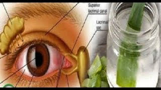 пОПРОЩАЕТЕСЬ С ОЧКАМИ с помощью этого удивительного рецепта / как улучшить свое зрение