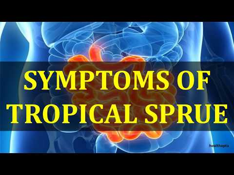 USMLE What you need to know about Tropical sprue by