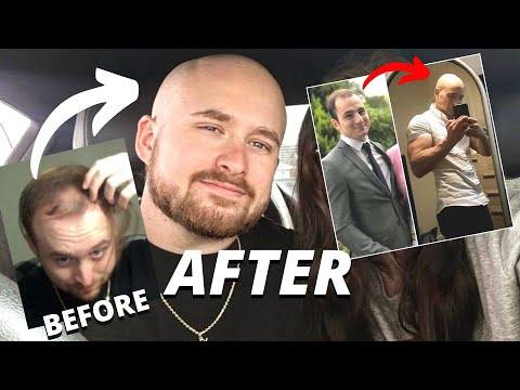 This Guy Made a Supercut of the Best 'Balding to Bald' Glow Up Transformations