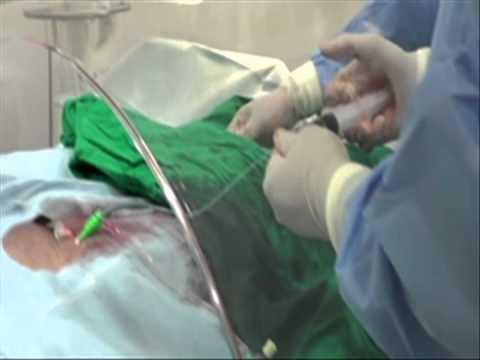 Digital Substraction Angiography (DSA) Rev. DR. Romeo R Sahertian