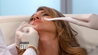 Facial Filler to Achieve a Chin Lift?