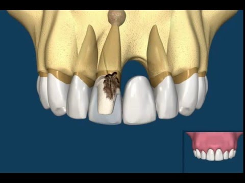 Dental Implant vs Bridge | Dr. Yuriy May's Analysis