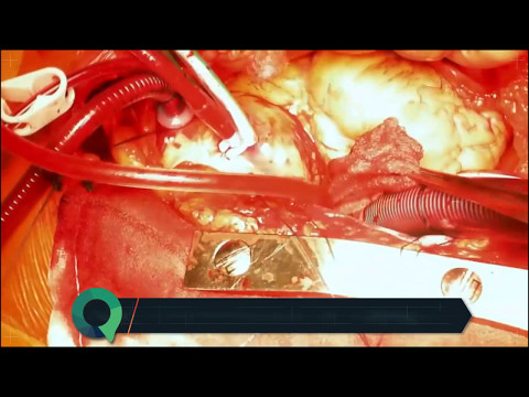 "Aortic Valve Replacement (Mechanical) - Full surgery with ""Speed-Art"""