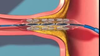 Атеросклеротический и фибромускулярный стеноз почечной артерии