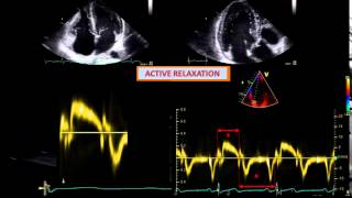 DETERMINANTS OF DIASTOLIC DYSFUNCTION: relaxation restoring forces lengthening load