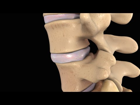Back Pain: Lumbar Disc Injury