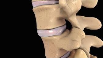 hqdefault - Back Pain L 4