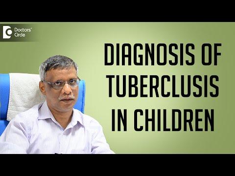 Diagnosis of tuberculosis in children - Dr. Cajetan Tellis