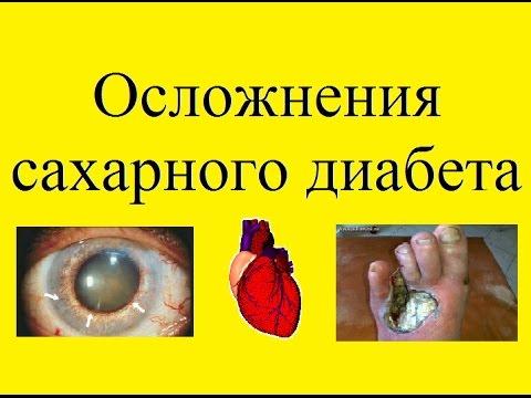 Осложнения сахарного диабета | диабетическая | ретинопатия | осложнения | сахарного | поражение | сахарный | диабета | нервов | диабет | стопа