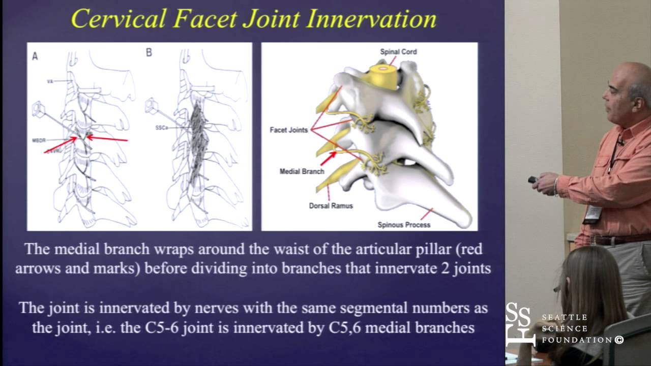 Cervical & Lumbar Facet Joint Anatomy by Mario De Pinto, M.D. - YouTube