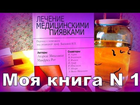 Лечение пиявками в домашних условиях, как ставить пиявок