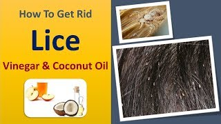 how to get rid lice - Vinegar & Coconut Oil