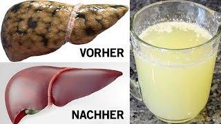 Trink eines dieser drei Getränke, um deine Leber zu entgiften!