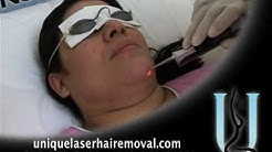 Laser Hair Removal in Plantation FL, Weston, Hair Removal, 33025