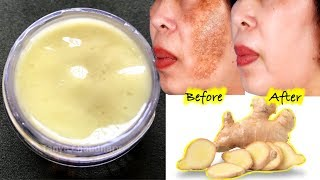 Pigmentation Removal Cream | How To Permanently Remove Pigmentation, Dark Spots & Acne Scars At Home
