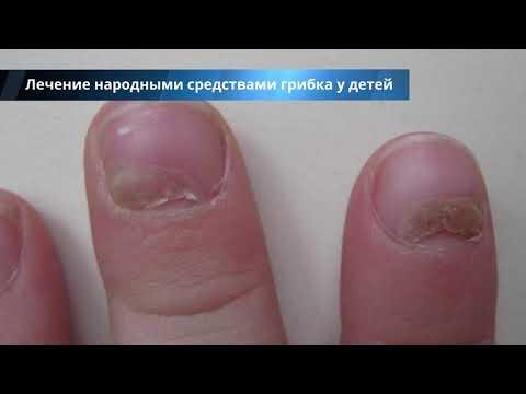 Грибок ногтей на ногах у ребенка