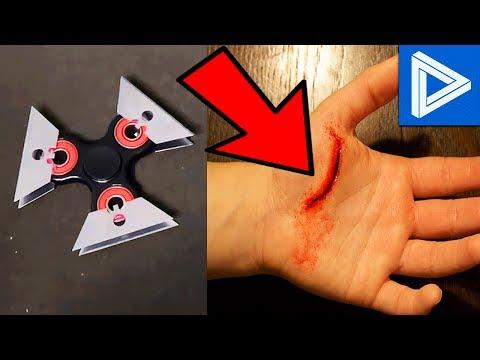 10 Most CRINGE Fidget Spinner Videos! (Fidget Spinner Injuries, Fails & Cringe Compilation)