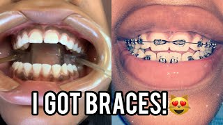 CHY-CHY GETS BRACES VLOG!