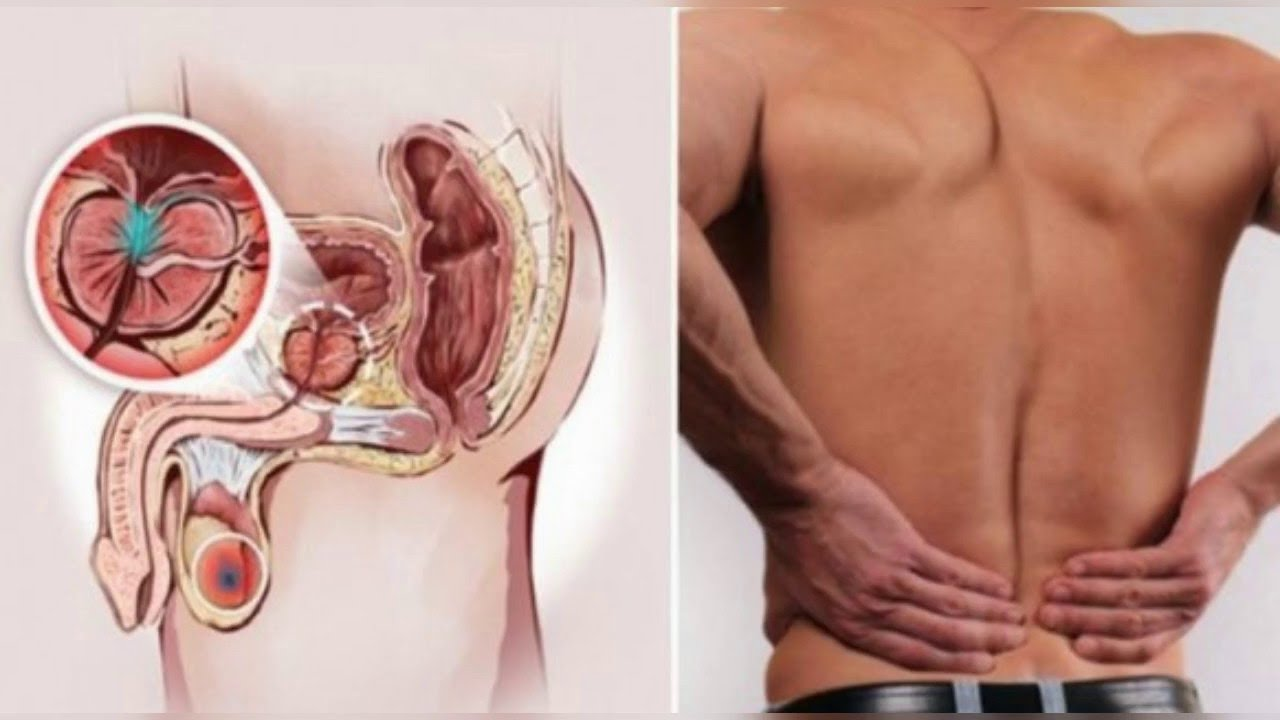 12 early warning signs of prostate cancer that every guy needs to12 early warning signs of prostate cancer that every guy needs to know do not ignore !