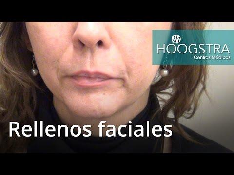 Rellenos faciales (16136)